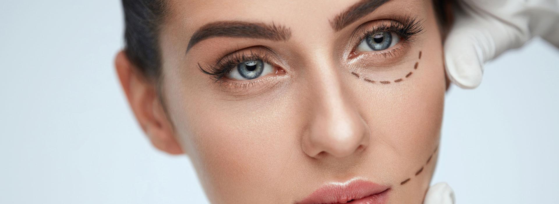 Cosmetic Eyelid Correction