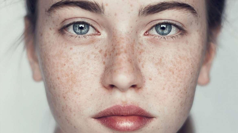 Freckles Laser