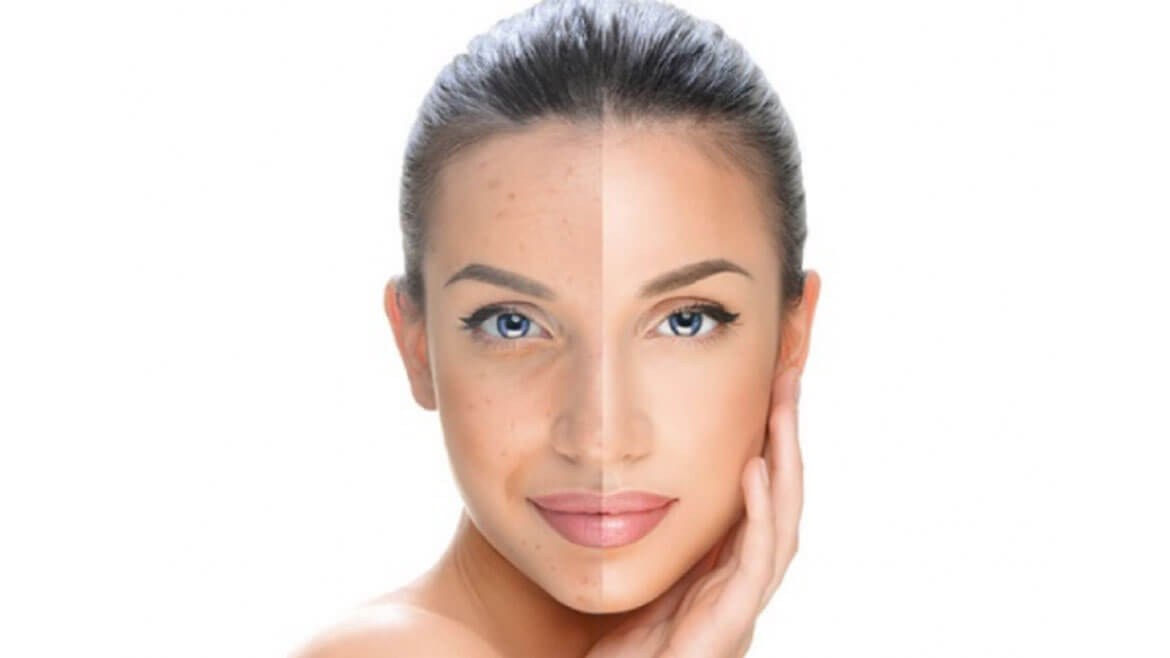 What Is the Cost of Laser Treatment for Skin Pigmentation?