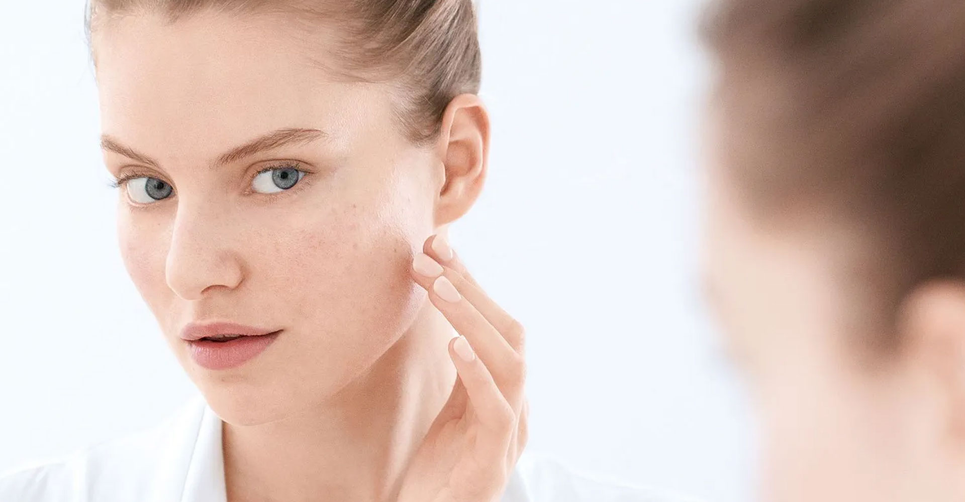 How To Deal With Acne-Prone Skin During Monsoon