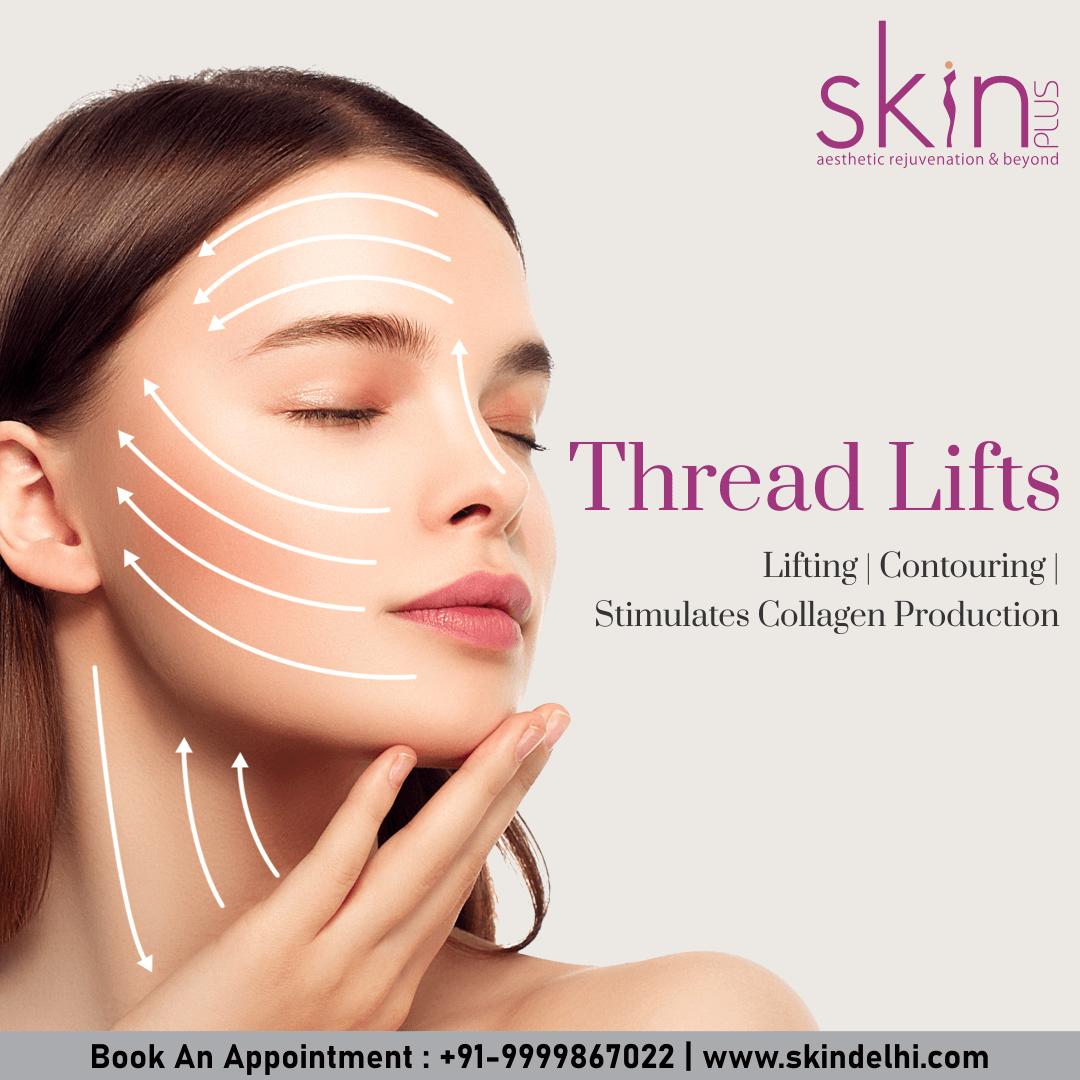 Thread lifts in delhi by skin plus