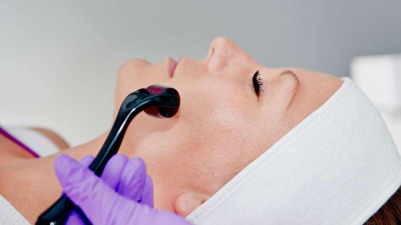 Collagen Induction Treatment