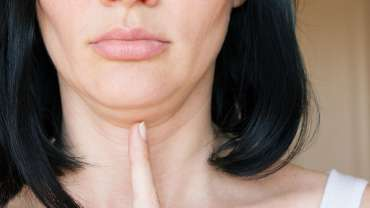Double Chin Correction