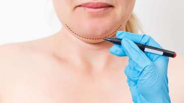 Neck Line Wrinkles Reduction