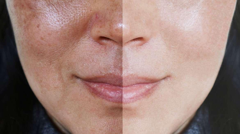 Open Pores Treatment