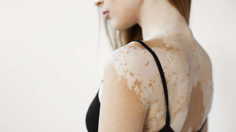 Vitiligo Patch