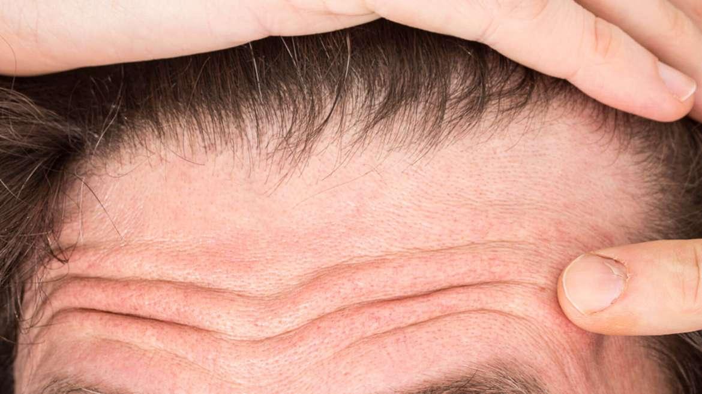 Open Pores Reduction
